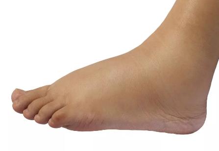 Características del Pie