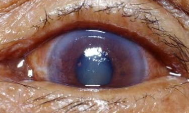 características del Glaucoma