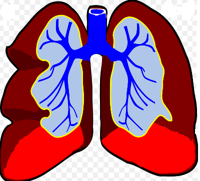 características de Infección Pulmonar
