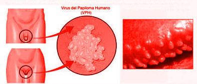 características del VPH