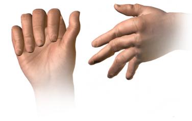 características de la Artritis