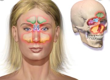 características de la Sinusitis